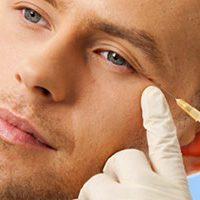 chirurgia-estetica-per-uomo-720x380