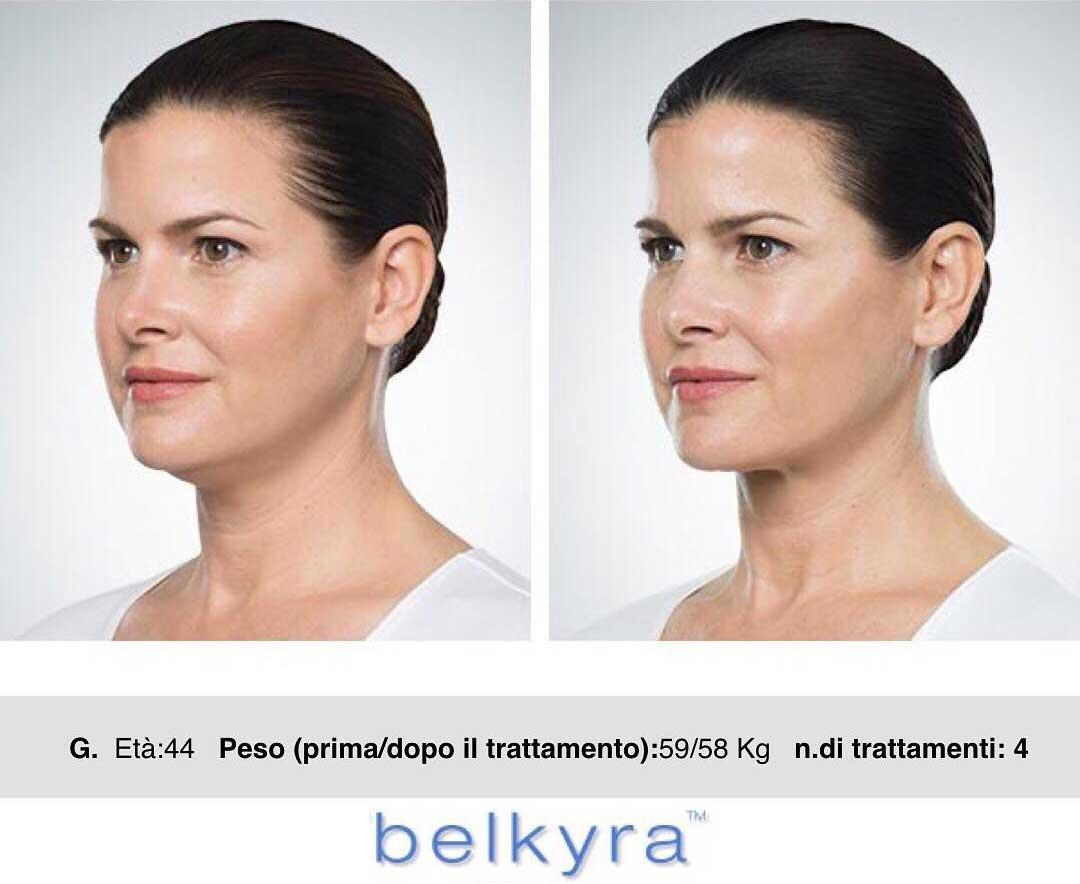 Belkyra_03